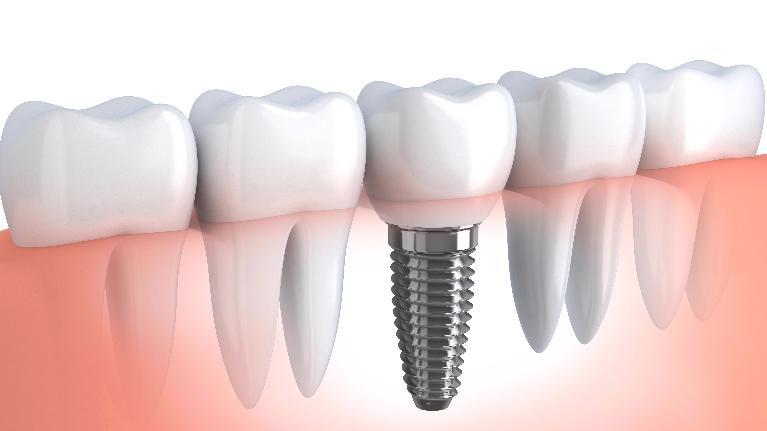 Зубные импланты тюмень